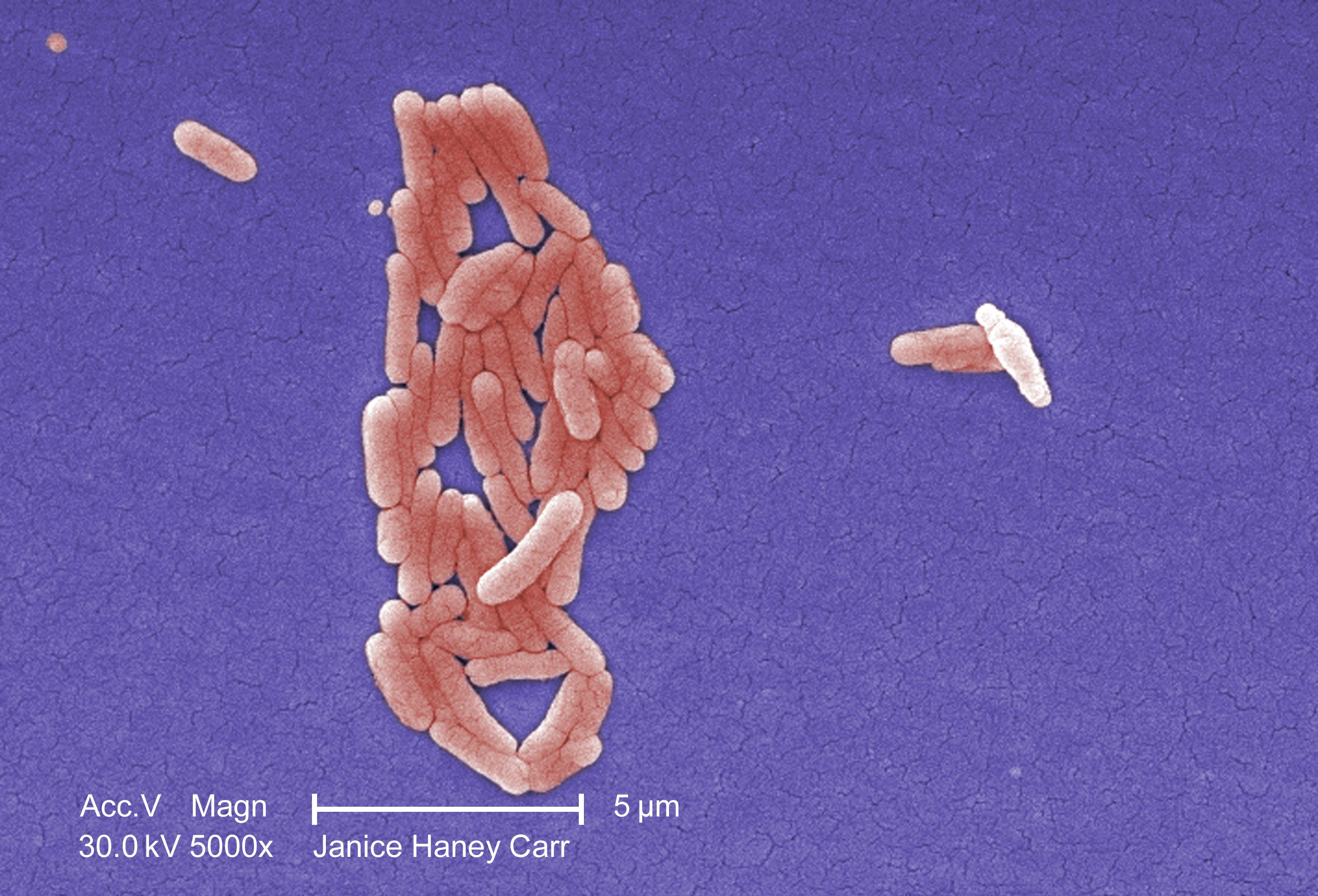 No clear source in multistate salmonella outbreak linked to turkey products