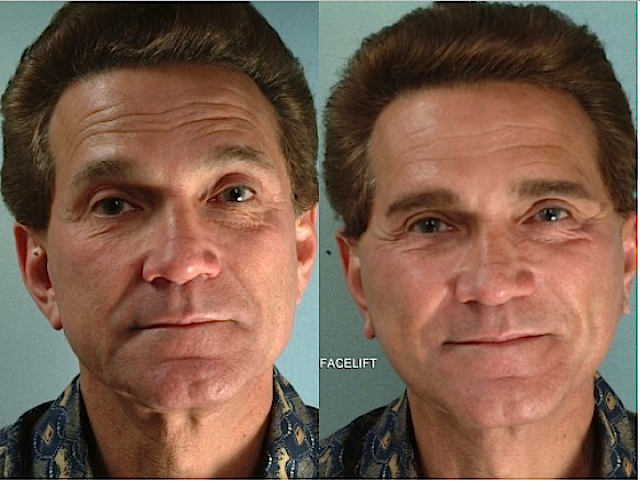 Plastic Surgery For Men Up By 43 Percent As They Compete In Job