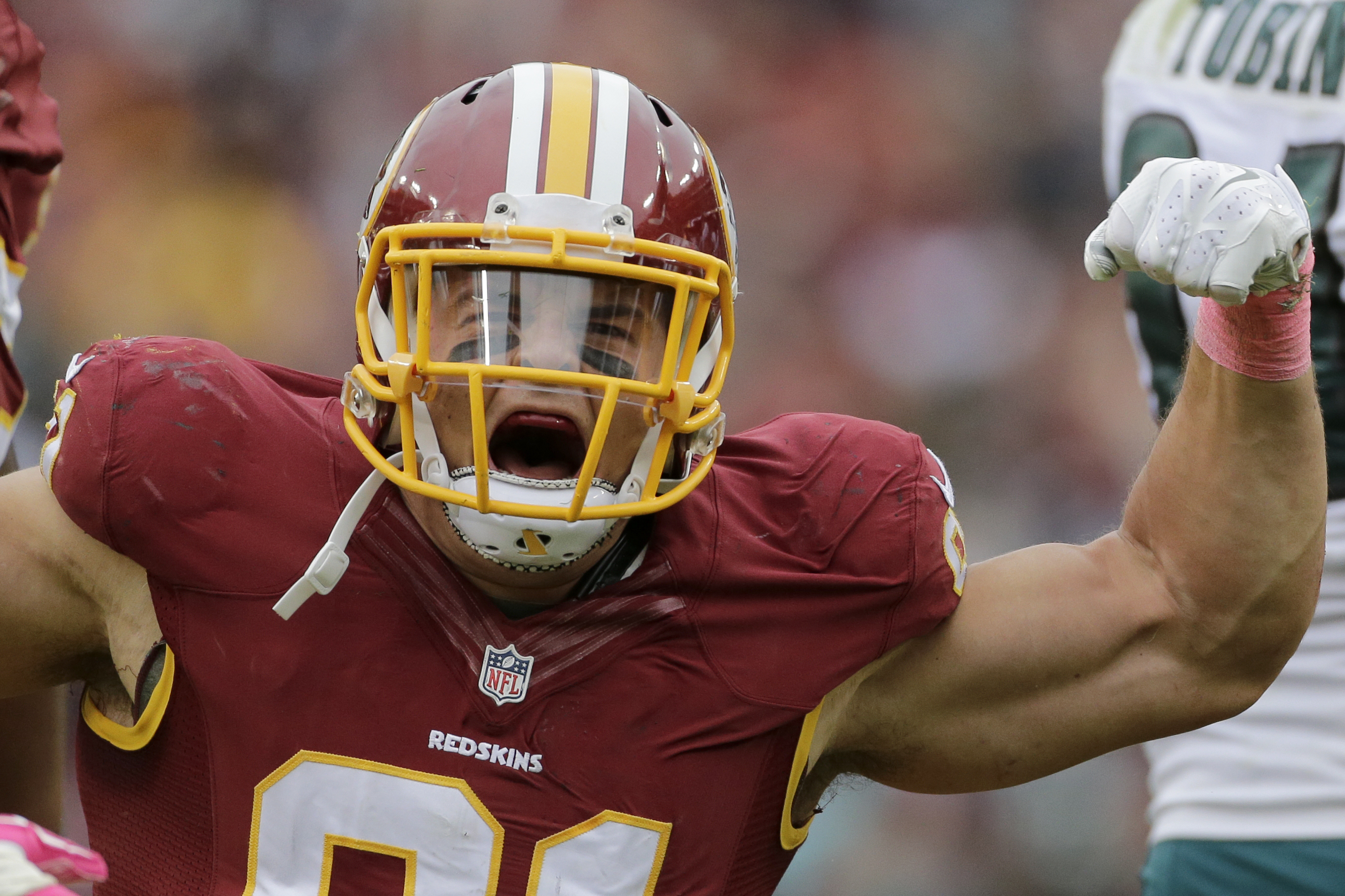 Ryan Kerrigan hopes to play after bye week following surgery on