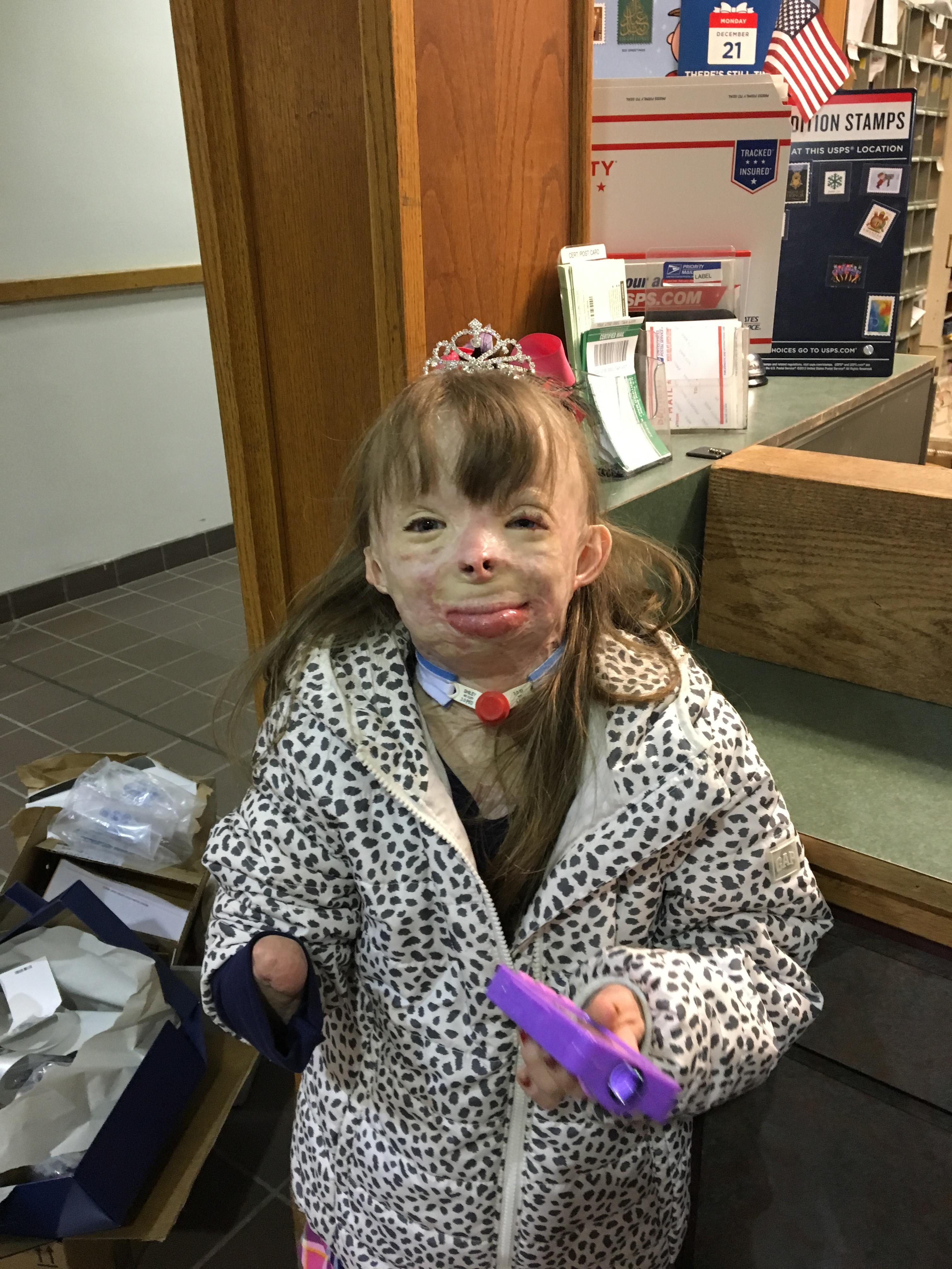 christmas comes early to 8 year old disfigured by fire washington times - Christmas Gifts For 8 Yr Old Girl