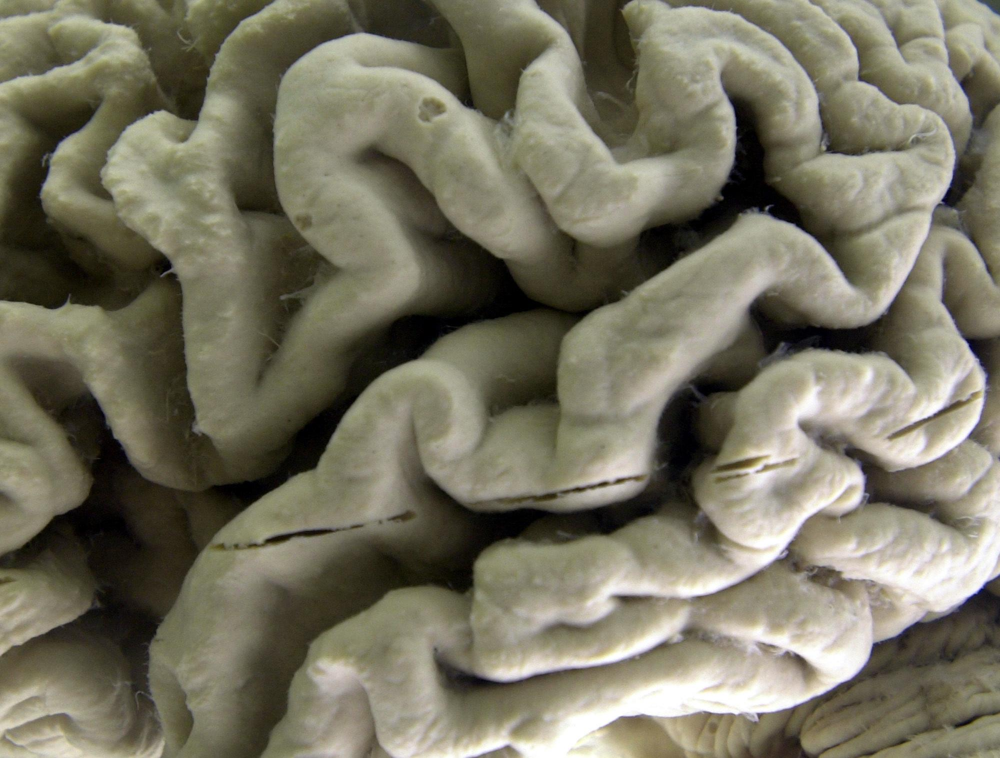 'Leaky' brain could be early sign of Alzheimer's disease: Study